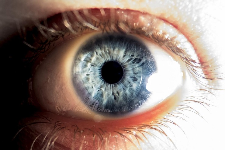 Symptoms of Keratoconus Eye Disorder
