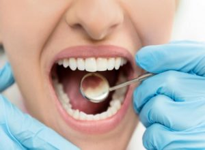 Why Cavities in Children Are a Big Deal
